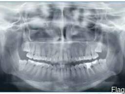 Рентген аппарат дентальный панорамный - фото 5